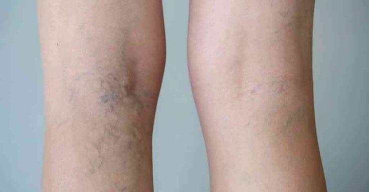 Inestéticas e incomodativas, as varizes surgem nas pernas, resultado de uma má circulação sanguínea e de alguns fatores externos, como o álcool, tabaco ou uma alimentação incorreta. O sedentarismo também provoca varizes. Estas afetam, sobretudo,
