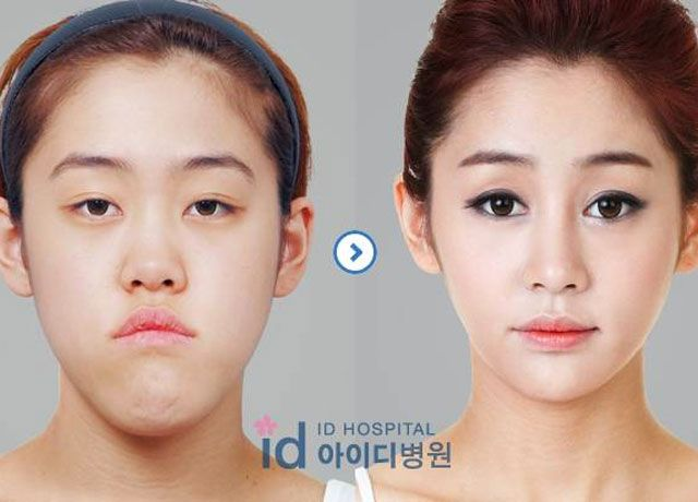 Best Plastic Surgeons In Korea Travel 2018