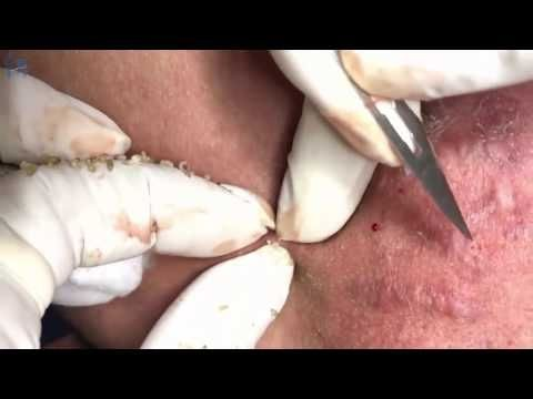 (76) Cystic Acne, Pimples And Blackheads Extraction Treatment On Face! (Part08) - YouTube