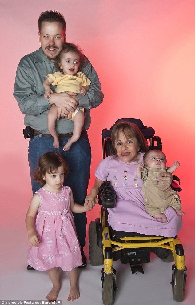 Woman with osteogenesis imperfecta with her averaged sized ...
