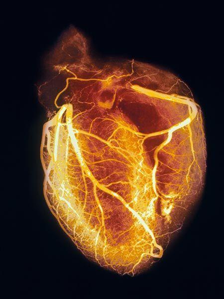 Angiogram of healthy heart