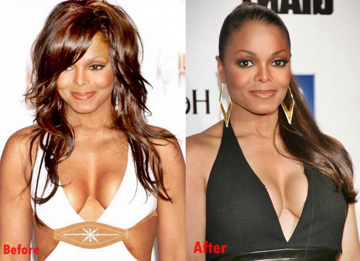 E Breast Implants Before And After Janet Jackson Breast I...