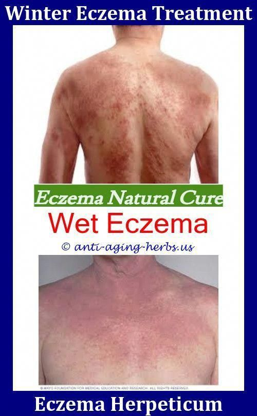 Eczema On Scalp Nummular Eczema Diet,follicular eczema eczema fluid