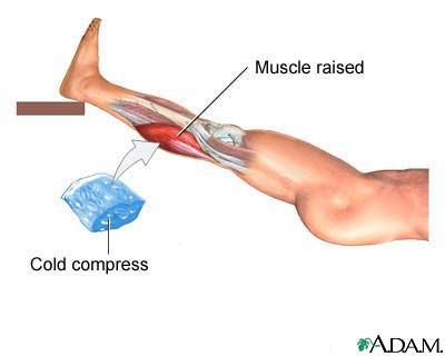 Home Remedies For Pulled Calf Muscle