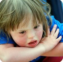 Down Syndrome: Screening For Breathing Problems To Stop Unnecessary Suffering - Pinned by @PediaStaff – Please Visit ht.ly/63sNtfor all our pediatric therapy pins