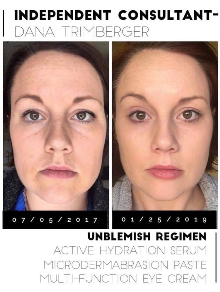 Hello Glow Rodan And Fields Rodan Skin Care
