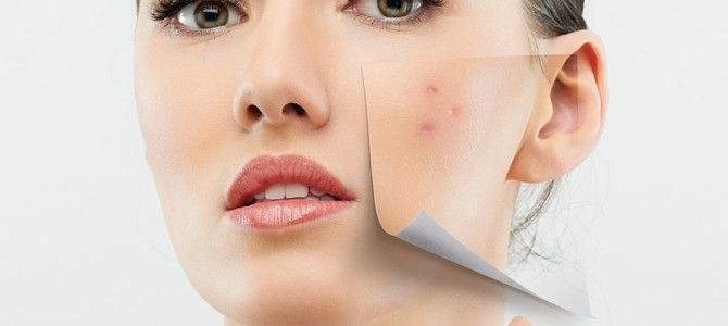 Tea Tree Oil as Natural Acne Remedy