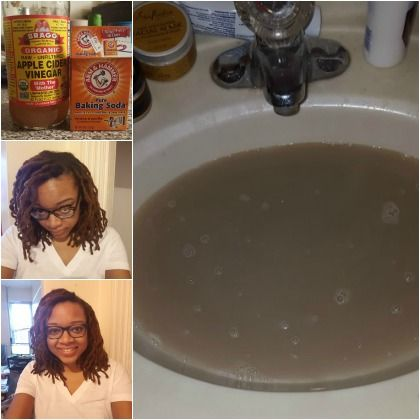 During my best attempts to shampoo and scrub my hair, I could never seem to get my scalp to appear as clean as it did after my apple cider vinegar rinse.