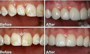 composite buildups before and after treatment at kallangur dental surgery - Kallangur Dental Surgery, Dentists, Kallangur, QLD, 4503 - Appointments-07 38860933