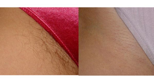 Remove Unwanted Hair Forever. Initially, the Hair Will Start to Become Thinner and Eventually Disappear Forever