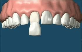 Many patients suffered from crooked teeth that bother them for a long time. #Porcelainveneersmelbourne is a prominent name in the dental industry that would help in getting the regular tooth shape.