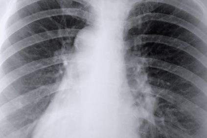 How to Repair Lungs From Smoking