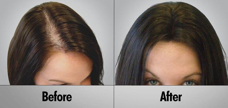 ‪#‎Hairthickness‬ is another matter, which should be paid attention to, in…