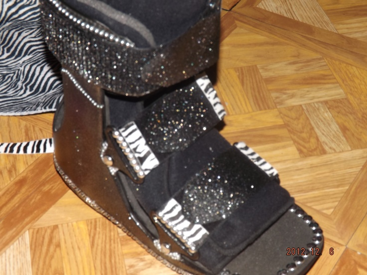 """Wearing an ugly """"Frankenboot"""" for 5 weeks was not an option, so I blinged out my cast with zebra print, studs, pearls & tons of glitter spray! (Thanks to Michael's craft store)"""