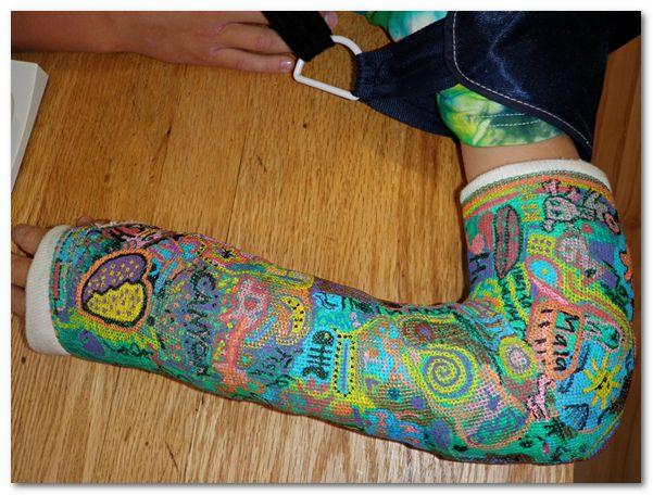 1000 images about cool casts on pinterest artworks for Arm cast decoration ideas