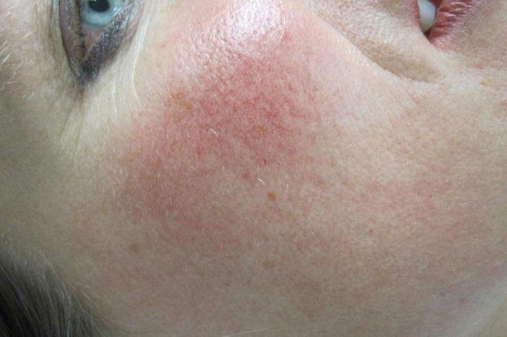 Posti purulenti sulla ragione di faccia trattamento