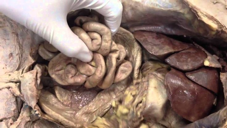 64 best lab practical images on Pinterest | Labs, Human ...