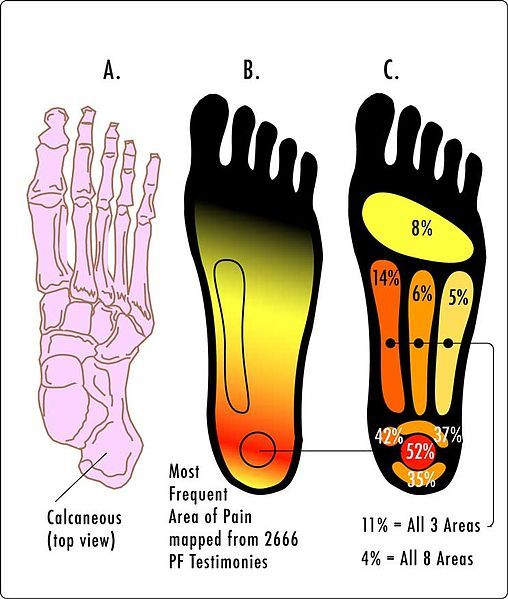 Preventing and Treating Plantar Fasciitis in Runners