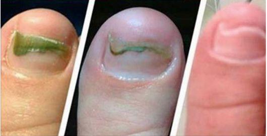 Um verdadeiro limpador de peles.É assim que podemos definir o remédio que você aprenderá neste post.Ele elimina furúnculos, cistos sebáceos, unhas encravadas, verrugas, acne, espinhas insistentes, manchas, cicatrizes...