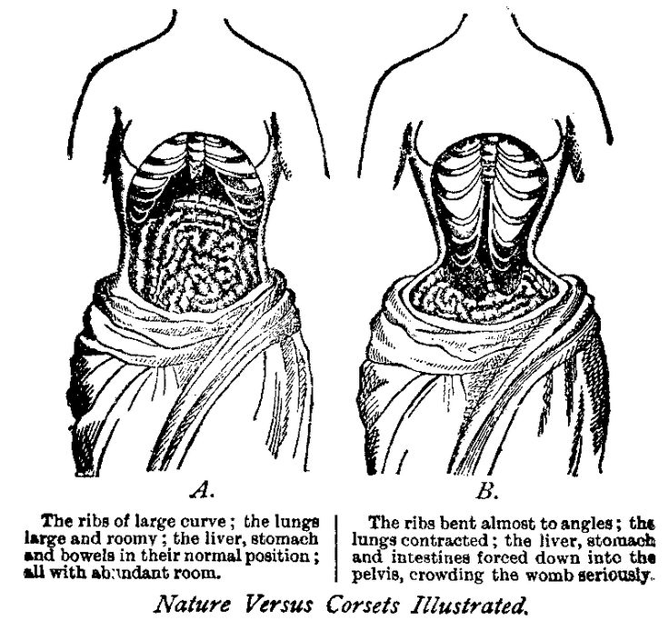 the harmful effects of waist training This illustration appeared as a foldout in a little book, über die  wirkungen der schnürbrüste (on the effects of the corset), written by samuel  thomas.