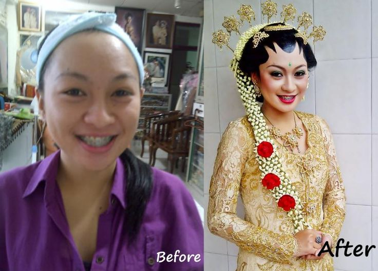 Before after pengantin
