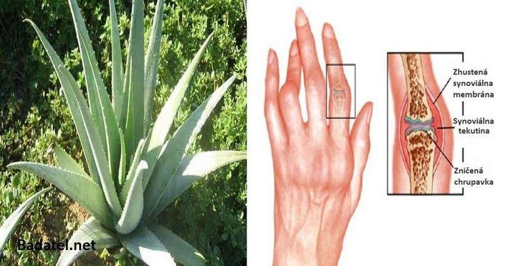 Lieky vás zmrzačia: Proti artritíde bojujte týmito prírodnými bylinkami a olejmi