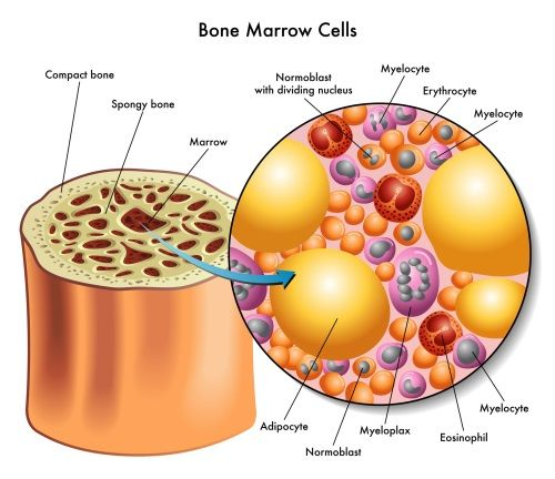 leukemia cancer and bone marrow Bone marrow aspiration and biopsy involves the removal of bone marrow, blood, and a small piece of bone with a needle and is used to find signs of cancer.