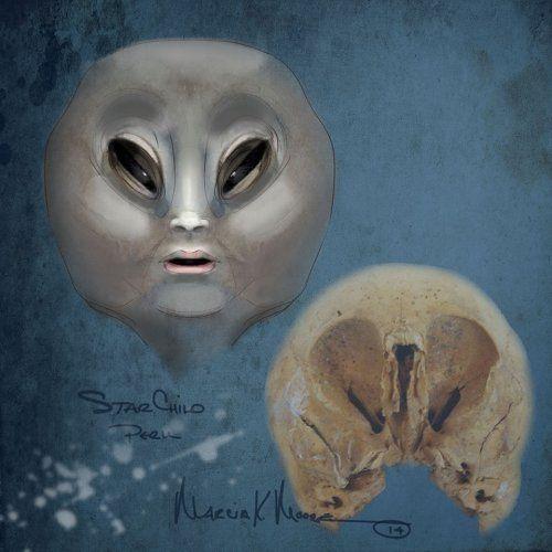 The famous Starchild Skull, found in a cave in Mexico in the 1930s and care taken by Lloyd Pye for 12 years was thought to be the only one o...