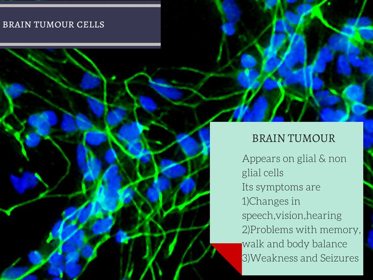 Brain tumors There are two types of brain tumors commonly seen in adults •Gliomas                    :appears in the glial cells(supportive cell in the brain) •Non glioma tumor :appears I n cells in the brain except  glial cells #Cancer #CancerTreatments #Calicut #Kerala #India #Treatments #Chemotherapy