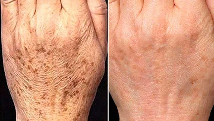 Sapete che esiste un rimedio naturale che cancella le macchie della pelle in soli 15 giorni? Oggi vi sveliamo la ricetta e il metodo di...
