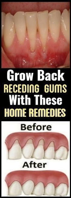 Grow Back Your Receding Gums With These Natural Remedies ! - Public Health ABC 2