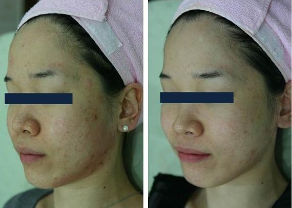 P1P Case Study.  소향라포리스 피부과 성형외과