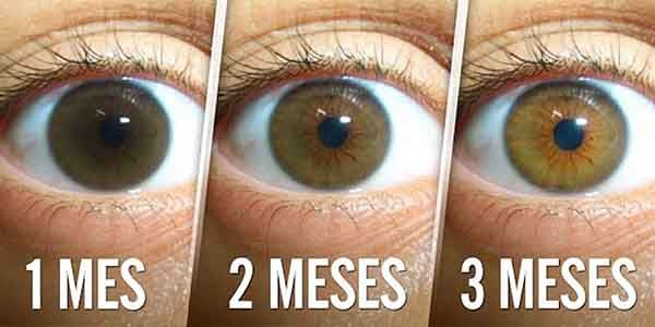 Una catarata es una opacidad en el cristalino del ojo que dificulta la visión y es progresiva e indolora. Las cataratas no son una enfermedad sino que se trata de un envejecimiento ocular que puede padecer cualquier persona debido a que es un problema que se relaciona con la edad y es una de las …