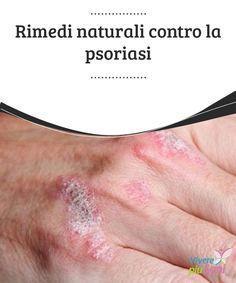 Rimedi #naturali contro la psoriasi Alcuni #rimedi naturali e consigli per tenere sotto #controllo la #psoriasi