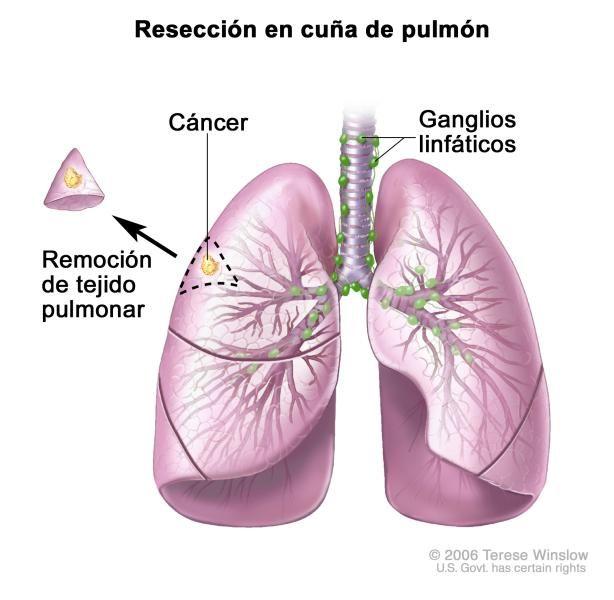 Resección en cuña del pulmón; muestra la tráquea y los pulmones con cáncer en uno de los lóbulos del pulmón. Se muestran el tejido extraído del pulmón con cáncer y una pequeña cantidad de tejido sano circundante al lado del lóbulo del pulmón del que se extrajo.