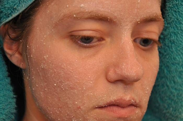 Aspirin maskesi tarifleri