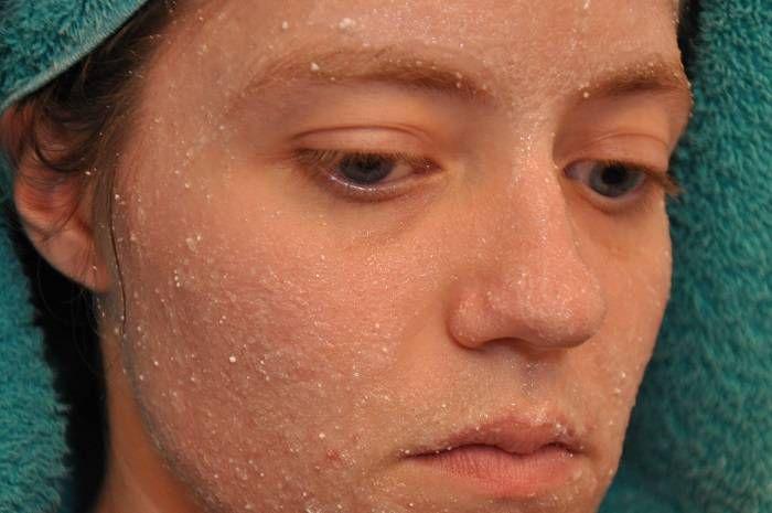 Aspirin cildiniz ve özellikle de sivilce tedavisi için etkili bir madde, peki aspirinle cilt güzelleştirici ve tedavi edici maskeler hangi tariflerle hazırlanır.