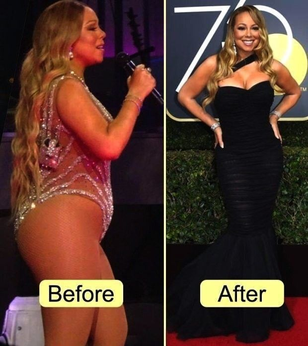Revitalizing Celebrities Liposuction Promotion Typesbook Bodysuit Benefits Dis Celebrities Before And After Before And After Liposuction Lose 25 Pounds