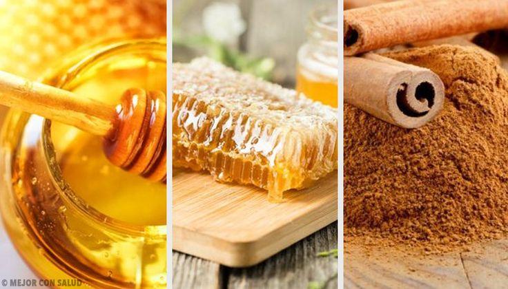 Descubre en este artículo un excelente remedio para subir las defensas a base de canela de Ceilán, propóleo, peladura de limón y miel de abeja.