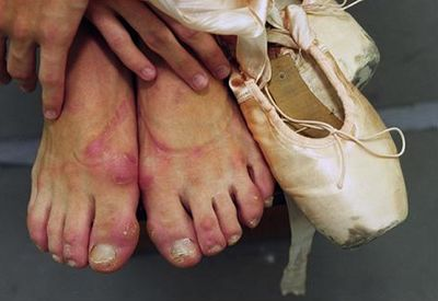 The feet of a ballerina - or, the price she pays for the beauty of those toe shoes
