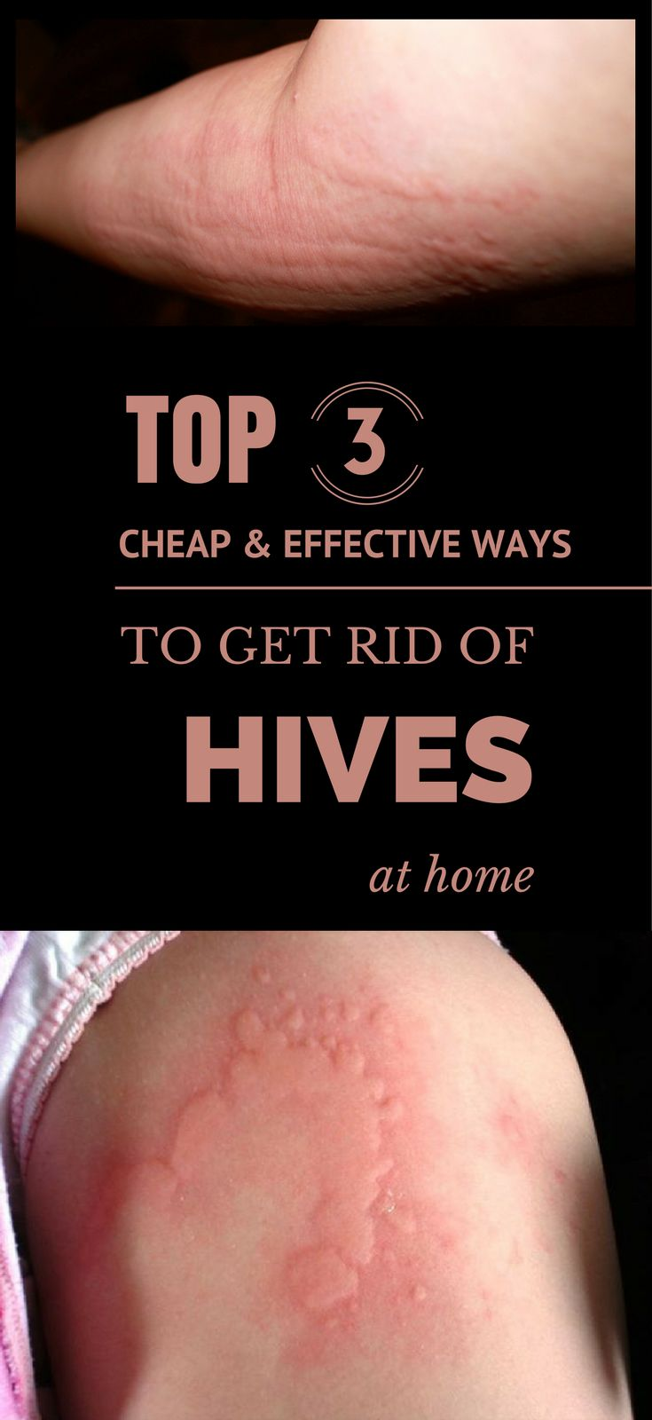 Hives are essentially an allergic reaction, caused when your body produces too much histamine, which is a type of a protein. These attacks can be categorized as short-term, chronic or long-term hives. One can easily guess that these categories are so named based upon how long the sufferer typically suffers from an outbreak. Its size can be very tiny to several inches wide. Multiple hives can even appear to be connected to form very spacious bumps on the skin. Hives can be also caused by…