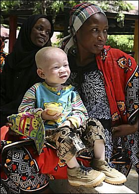 Albinos in Africa find a haven from being hunted for body parts | The Sun |Woman|Real Life