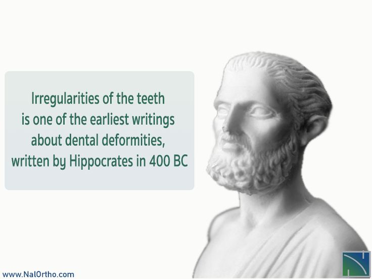 13 best Orthodontic Fact images on Pinterest | Braces, Orthodontics ...
