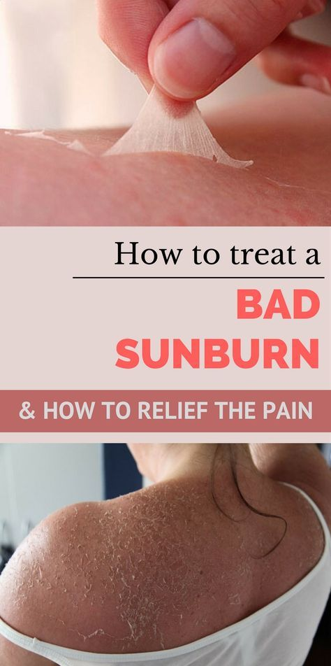 How To Treat a Bad Sunburn and How To Relief The Pain