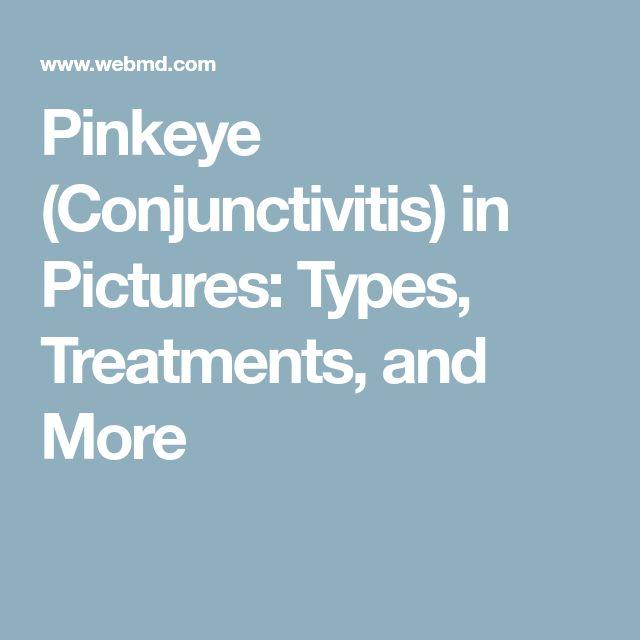 Slideshow: Pinkeye (Conjunctivitis) — Causes, Symptoms, & TreatmentsDeborah Rosch