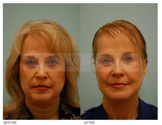 Corrective Facial Fat Transfer Photo - This Woman Is Shown After Browlifting, Facelifting, And Phenol Peeling. She Shows A Very Harsh Appearance That Still Looks Remarkably Tired In Her Expression. Of Note, She Also Has Two Red, Raised And Painful Scars From Her Phenol Peel.  #Lamfacialplastics #Drsamlam #Plasticsurgery #Fatgrafting #Fattransfer #Facialfattransfer
