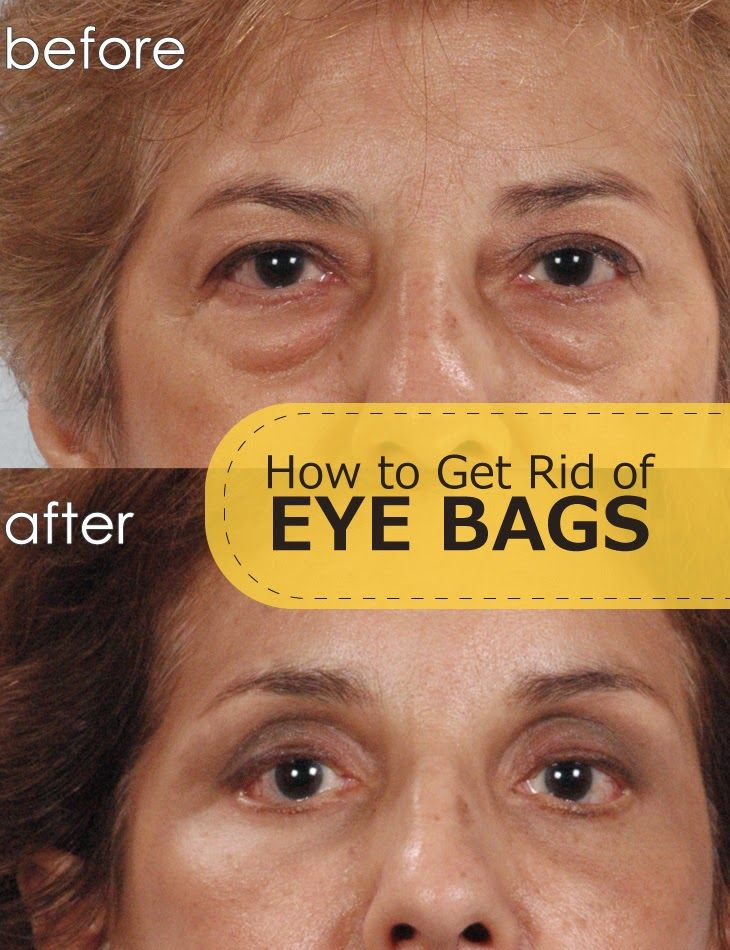 42 best images about Treat and Remove Eye Bags on ...
