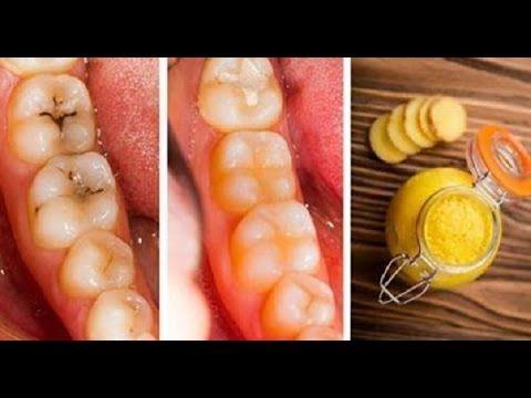 Voici comment guérir les caries et la dégradation des dents naturellement et facilement à la maison