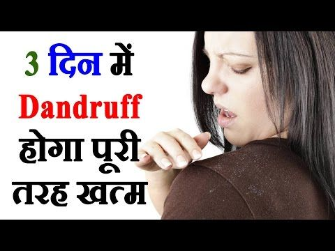 How To Remove Dandruff - सिर्फ 3 दिन में डैंड्रफ खत्म कीजिये How To Remove Dandruff In 3 Days #138 -  CLICK HERE for The No. 1 Itchy Scalp, Dandruff, Dry Flaky Sore Scalp, Scalp Psoriasis Book! #dandruff #scalp #psoriasis How To Remove Dandruff. सिर्फ 3 दिन में डैंड्रफ खत्म कीजिये. Watch how to remove dandruff in 3 days in 138th episode of Beauty tips in Hindi by So