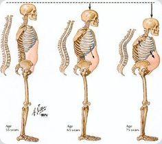 La verdad sobre el tratamiento de Osteopenia.